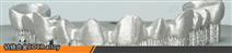 3D打印金屬粉末CoCrMo鈷鉻鉬合金
